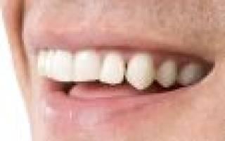 Выпали два передних зуба во сне сонник