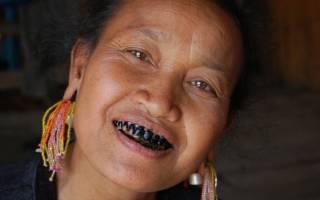 Сонник черный зуб выпал