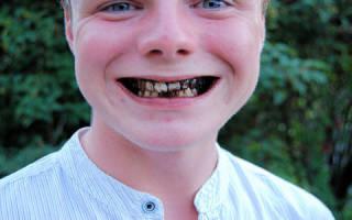 Видеть во сне гнилые зубы у себя сонник