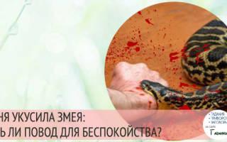 Значение сна укус змеи сонник