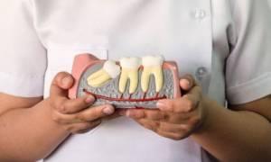 К чему снится лишний зуб во рту сонник